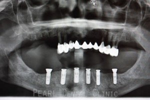 Full mouth Rehabilitation Implant - Upper_Lower teeth with added six strauman