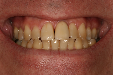 Before After Single Unit Implant Crown - Crown attached to the implant