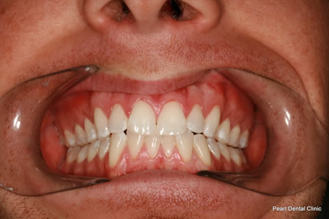 The patient below was unhappy with his front four teeth. To improve his smile we whitened his teeth and did gum reshaping and placed four Emax veneers on his front four teeth.