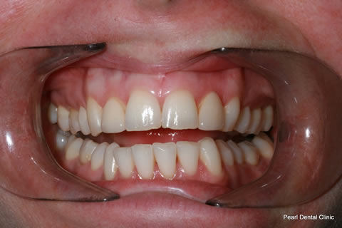Before - Full arch upper_lower teeth stain