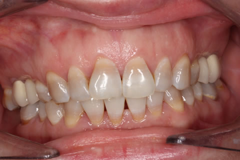Before - Full upper_lower arch teeth stain