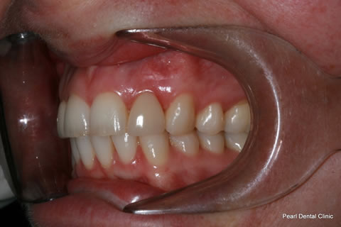 Before - Left full arch upper_lower teeth stain