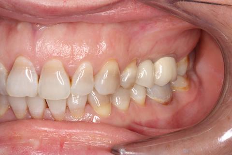 Before - Left full upper_lower arch teeth stain