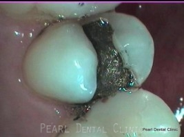 Before Mercury Free White Fillings - Replacing teeth fillings