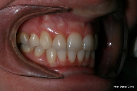 Before - Right full arch upper_lower teeth stain