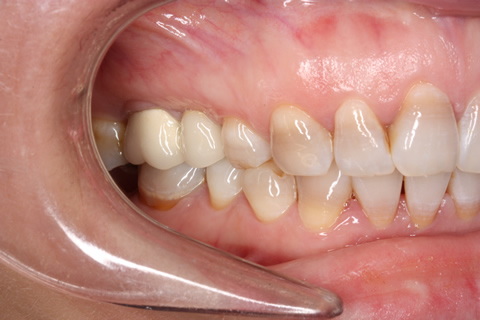 Before - Right full upper_lower arch teeth stain
