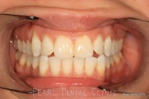 Before Teeth Whitening_Veneers Flourosis teeth