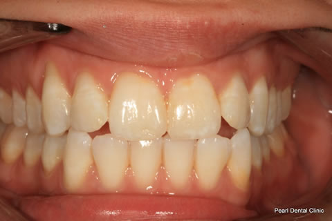 Before Teeth Whitening_Veneers Full arch flourosis teeth