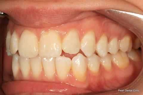 Before Teeth Whitening_Veneers - Left side full arch flourosis teeth