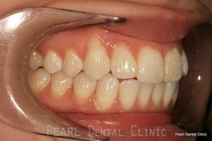 Before Teeth Whitening_Veneers Right side full arch flourosis teeth