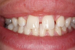 Before Upper Teeth Gaps - Upper teeth gaps