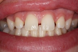 Before Upper Teeth Gaps - Upper teeth gaps emax