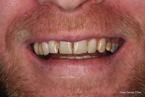 Before Upper teeth smile makeover