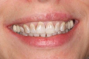 Before - Upper_lower arch teeth stain
