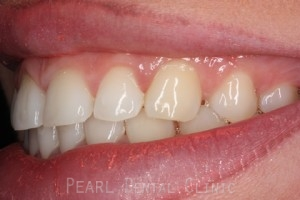 Before Veneers - Emax veneers closed gap left side