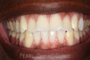 Before Veneers - Fluorosis top_bottom teeth stain