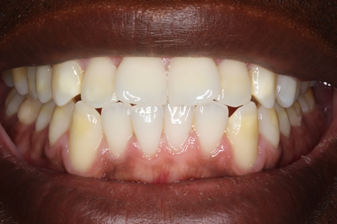 Before Veneers - Fluorosis upper_lower teeth stain
