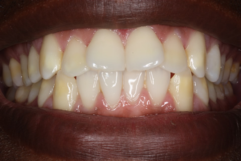 Before Veneers - Fluorosis upper_lower teeth stain_2