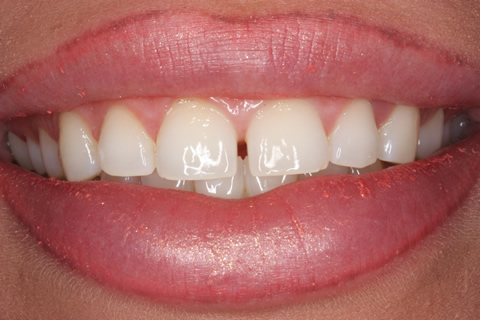 Before Veneers - Gaps between teeth