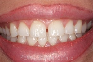 Before Veneers - Gaps between teeth front