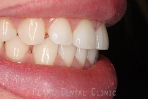 Before Veneers - Gaps between teeth right side