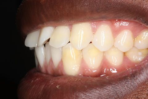 Before Veneers - Left side fluorosis top_bottom teeth stain