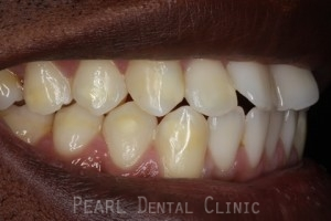 Before Veneers - Right side fluorosis upper_lower teeth stain