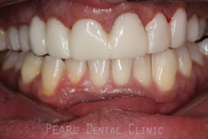 Before Veneers_crowns - Front full upper_lower arch teeth temporary veneers_crown