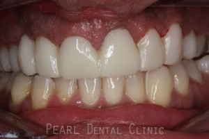 Before Veneers_crowns - Full upper_lower arch teeth temporary veneers_crowns