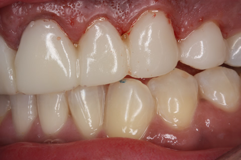 Before Veneers_crowns - Left side full upper_lower arch teeth temporary veneers_crown
