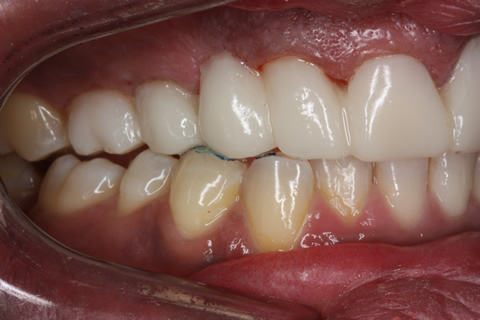 Before Veneers_crowns - Right side full upper_lower arch teeth temporary veneers_crown