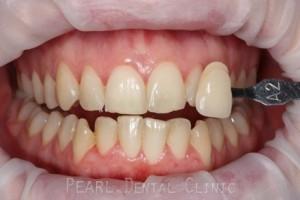 Before Zoom Teeth Whitening