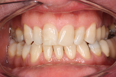 Before alignment_veneers - Upper_lower arch declined orthodontic treatment