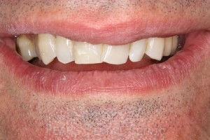 Before teeth alignment_veneers - Front teeth look
