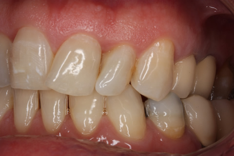 Before teeth alignment_veneers - Left side upper_lower arch teeth alignment