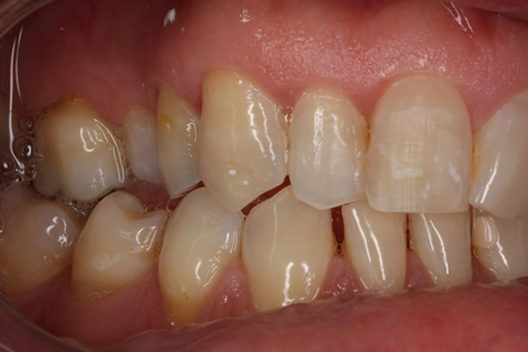 Before teeth alignment_veneers - Right side upper_lower arch teeth alignment