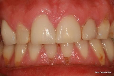 Broken Incisor Before After - Full arch teeth Emax Veneers