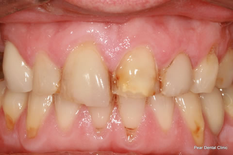 Broken Incisor Before After - Full arch teeth incisor