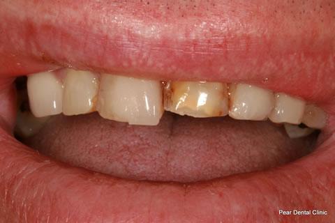 Broken Incisor Before After - Upper teeth incisor