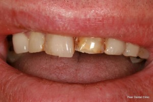 Broken Incisor Before After - Upper teeth incisor