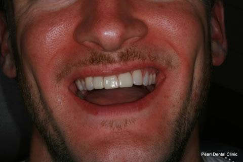 Composite Emax Posterior Veneer After - Full Smile