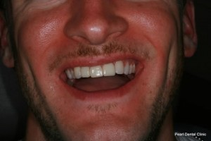 Composite Emax Posterior Veneer After - Full Smile