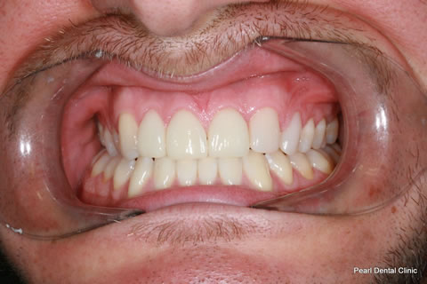 Composite Emax Posterior Veneer After - Full arch teeth