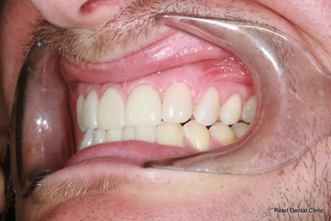 Composite Emax Posterior Veneer After - Left full arch teeth