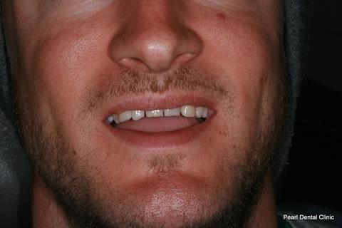 Composite Emax Posterior Veneer Before - Full Smile