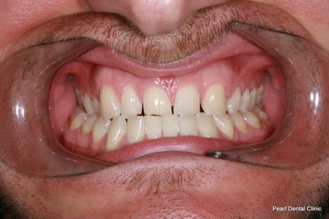 Composite Emax Posterior Veneer Before - Full arch teeth