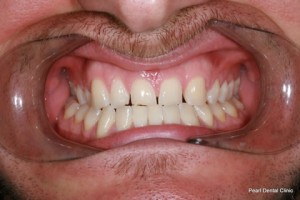 Composite Emax Posterior Veneer Before - Full arch teeth