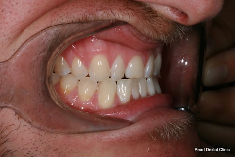 Composite Emax Posterior Veneer Before - Right full arch teeth