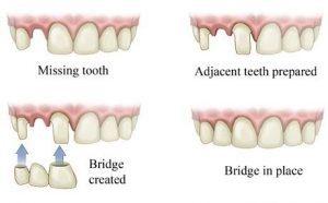 Dental Bridge Cost