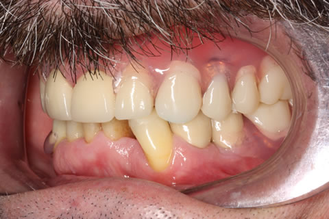 Denture and crown treatment